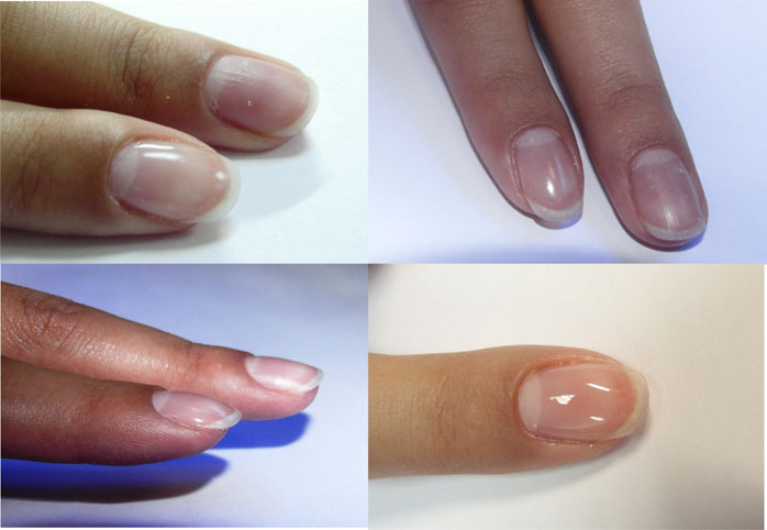 Покрытие биогелем своих ногтей